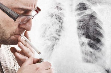 Lungenkrebs: Fakten zur 'Raucherkrankheit' und welche Rolle E-Zigaretten bei der Risikominimierung spielen könnten