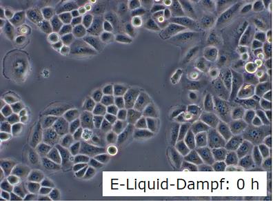 Lungenzellen mit Liquid Dampf