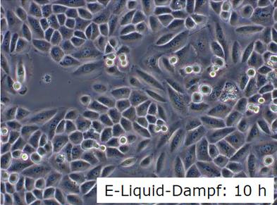 Lungenzelle mit Dampf vom Liquid